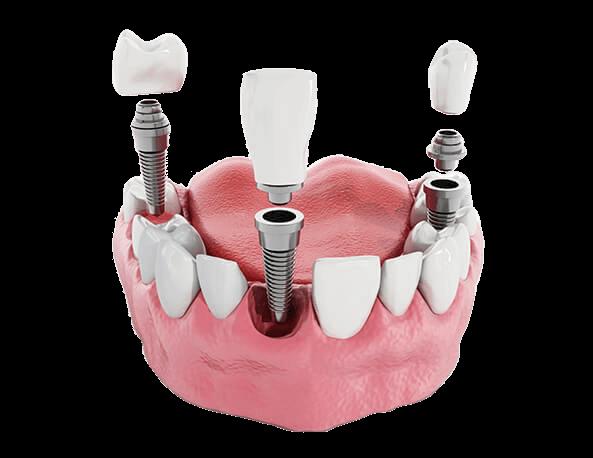 Port Jefferson Smiles-Karen Halpern DMD, MS-dental-implants-cutout