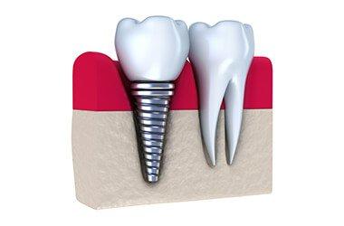 Port Jefferson Smiles - Karen Halpern DMD, MS - Dental Implants