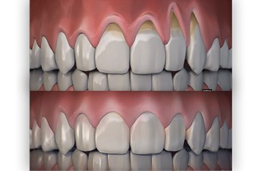 Port Jefferson Smiles - Karen Halpern DMD, MS - gum rejuvenation
