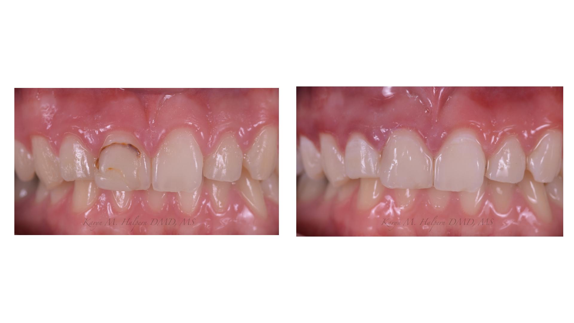 Cosmetic Dentistry - Port Jefferson Smiles