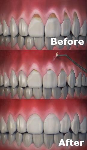 Gum Rejuvenation Port Jefferson Smiles