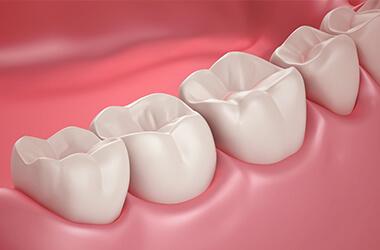 Port Jefferson Smiles-Karen Halpern DMD, MS-dental sealant