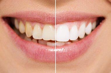 Port Jefferson Smiles - Karen Halpern DMD, MS - teeth whitening