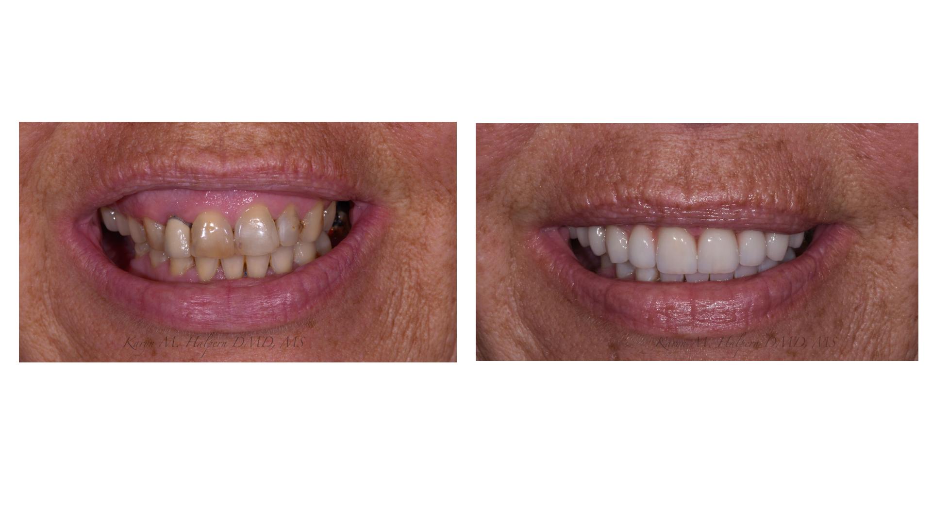 Gummy Smile Cosmetic Treatment - Port Jefferson Smiles