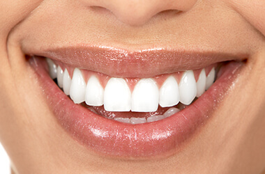 Port Jefferson Smiles-Karen Halpern DMD, MS-crown lengthening