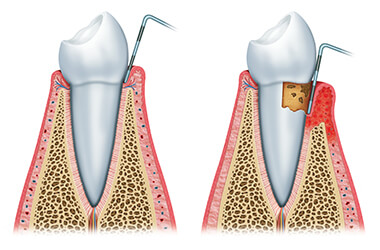 Non Surgical Treatment Of Periodontal Disease Port