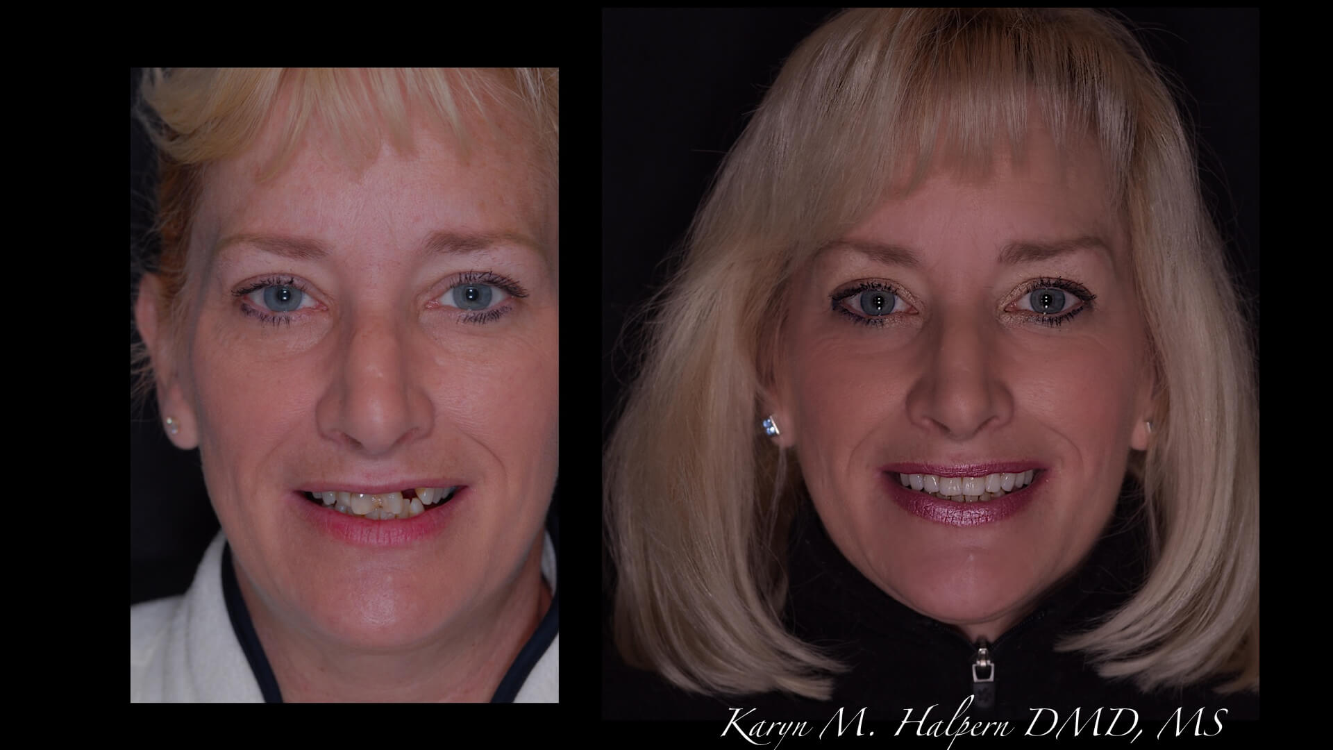 Port Jefferson Smiles-Karen Halpern DMD, MS-slider-14