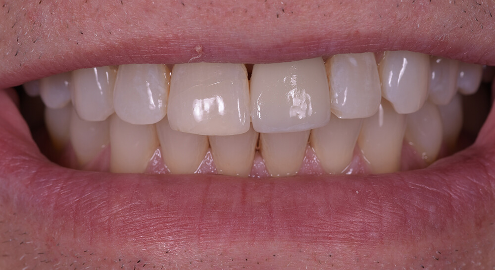 CEREC Crown - Dr. Karyn Halpern